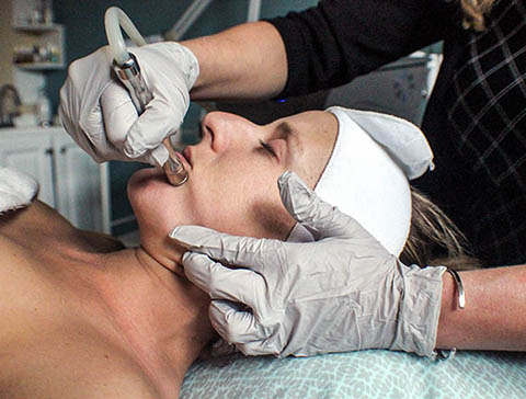 bend oregon microdermabrasion